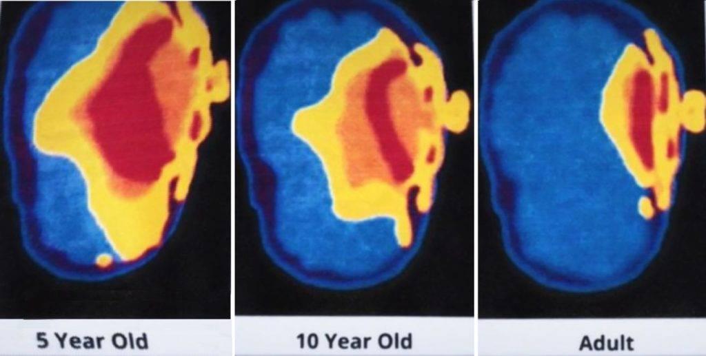 Le Iene Cellulare e cancro: ecco i rischi e come prevenirli