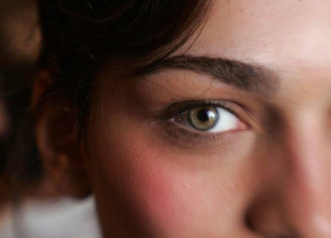 Borse sotto gli occhi: ecco i rimedi e le possibili cause