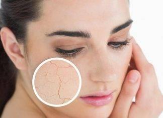 Pelle secca: cause, rimedi e come prevenire
