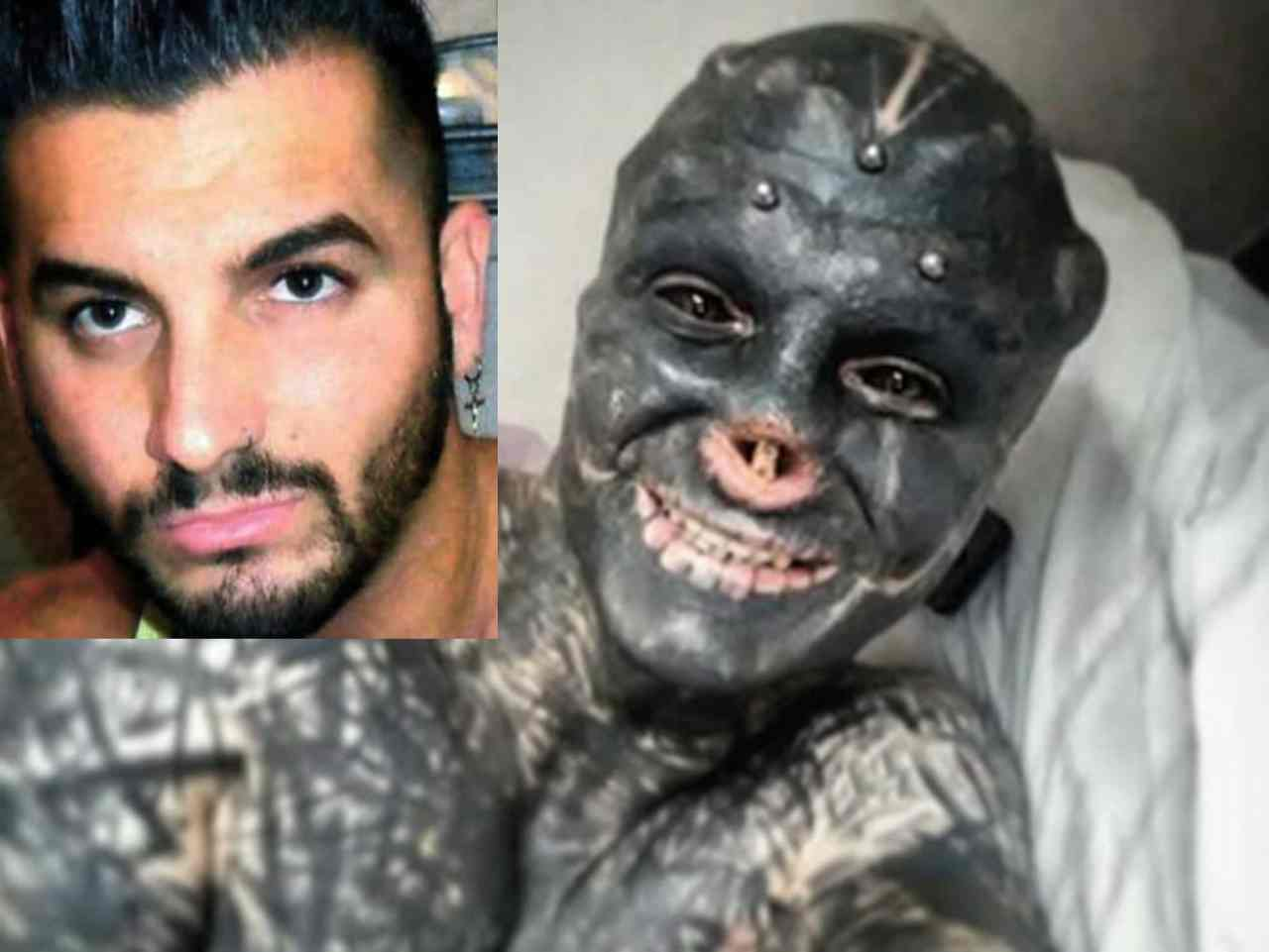 Anthony Loffredo, il ragazzo che si è fatto asportare naso e orecchie per sembrare un alieno