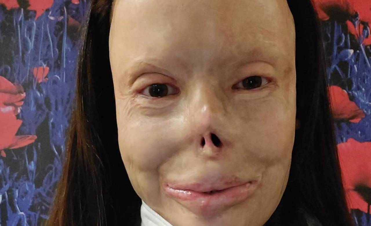 Valentina Pitzalis vittima di violenze: com'era prima dell'incendio