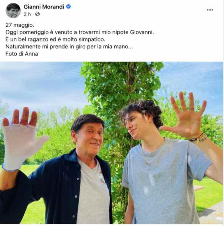 Gianni Morandi, visita a sorpresa per lui: quel gesto non sfugge