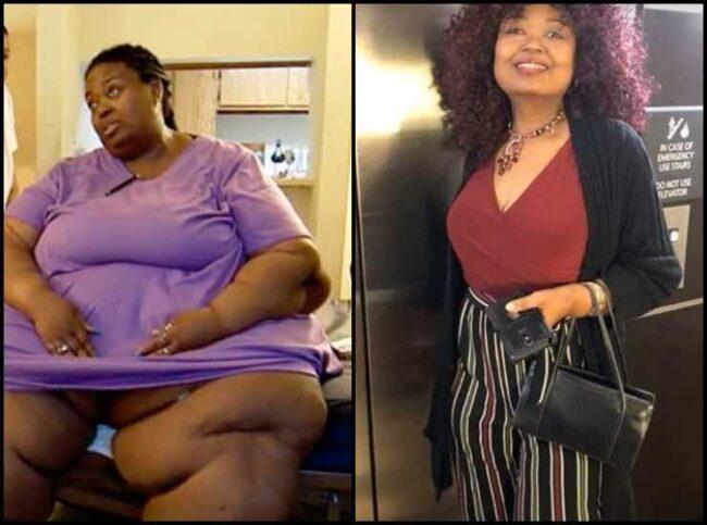 Vite al limite, l'incredibile trasformazione di 5 pazienti (FOTO)